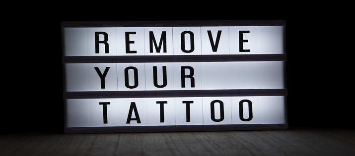 remove tattoo at home